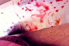 Rote Bete Massaker